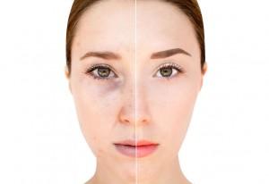 hoe gaat acne weg