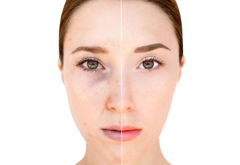 Pigmentvlekken Verwijderen Huid Bleken En Voorkom Huidverkleuringen