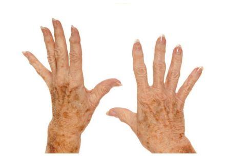 ouderdomsvlekken op handen